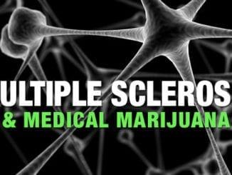 msandcannabis