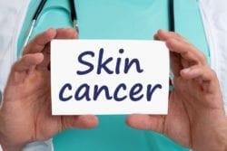 CBD Skin Cancer Benefits
