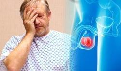 testicular cancer and cbd
