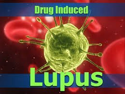 drug induced lupus